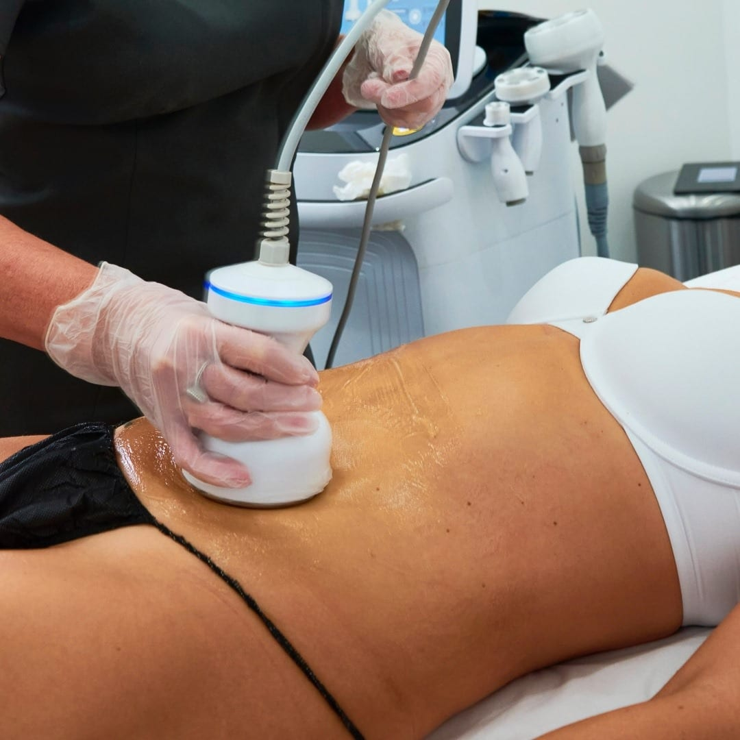 CAVITATION (CELLULITE TREATMENT)