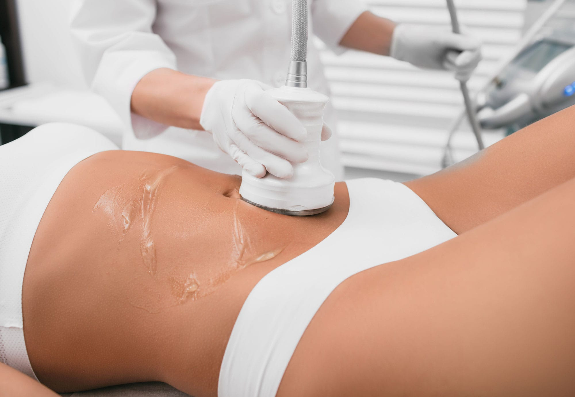 CAVITATION + RF (BODY SCULPTING)